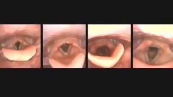 WARNING: You Can't Unsee This Creepy Yet Fascinating Video of the Human Voice in Action